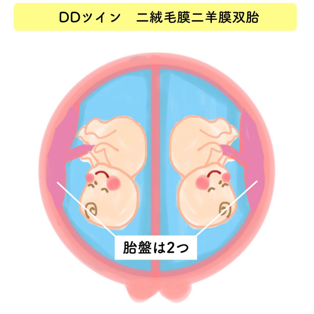 2絨毛膜2羊膜双胎