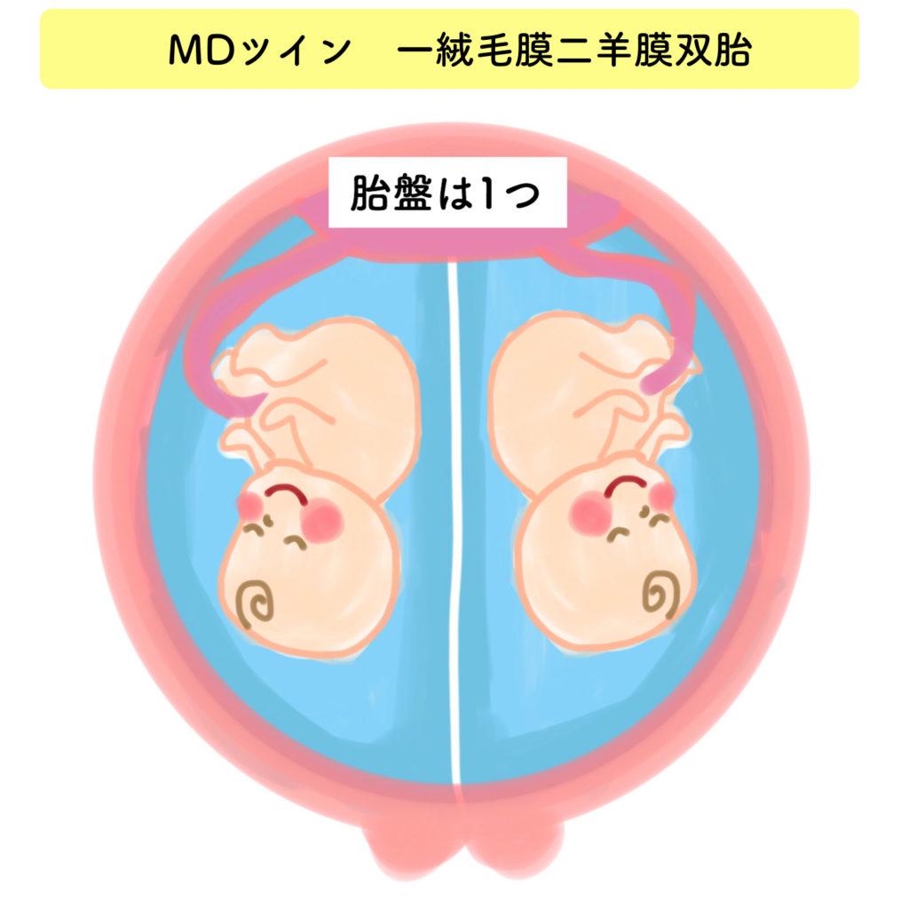 1絨毛膜2羊膜双胎