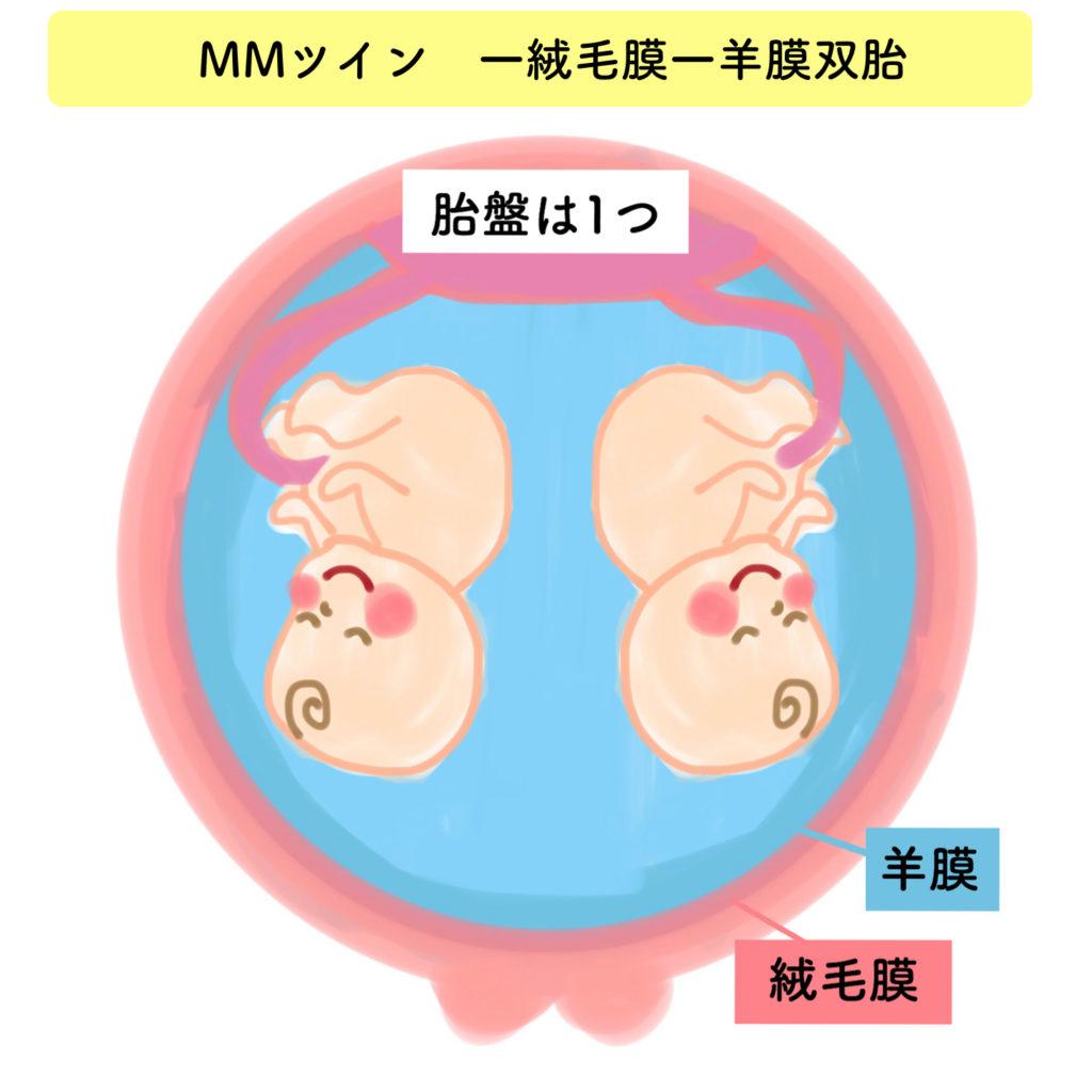 一絨毛膜一羊膜双胎