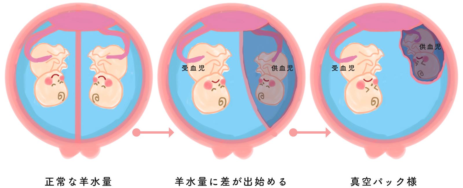 双胎間輸血症候群の進行