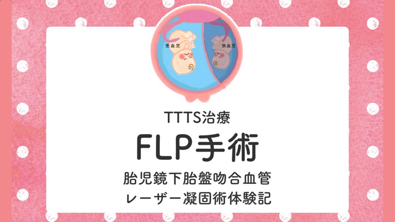TTTSレーザー治療体験記【FLP胎児鏡下胎盤吻合血管レーザー凝固術】
